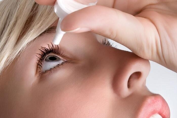 Không nên tùy tiện dùng thuốc nhỏ mắt khi bị dị ứng